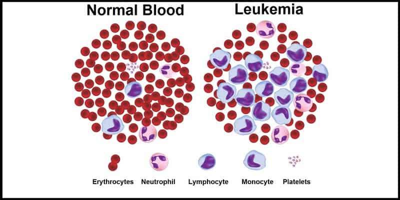 Penyakit Kanker Darah - Penyakit Kanker Leukemia