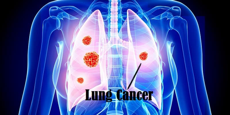 Penyakit Kanker Paru-Paru Pada Wanita