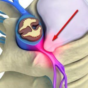 ciri-ciri syaraf kejepit - penyebab saraf kejepit - cara mengobati saraf kejepit - syaraf kejepit