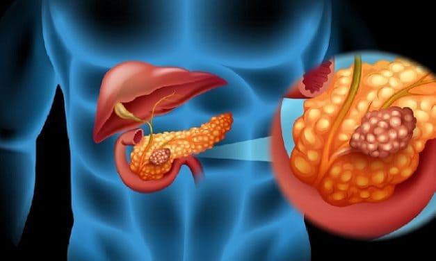Benarkah Penyakit Kanker Pankreas Paling Mematikan?