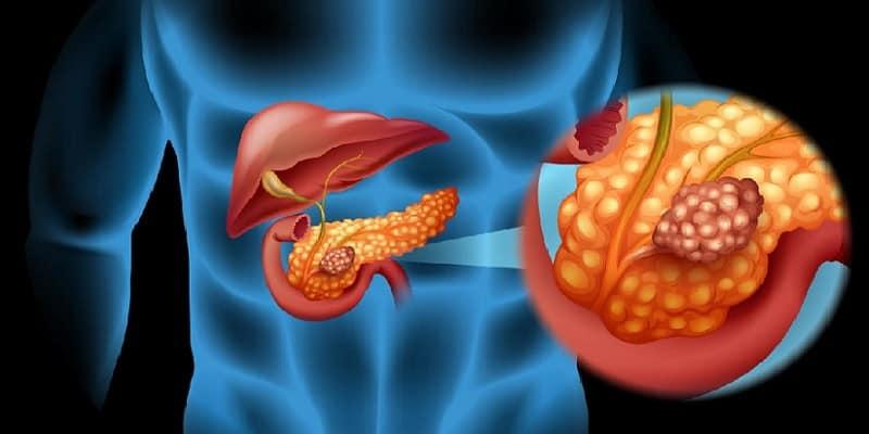 penyakit pankreas - penyakit kanker pankreas - penyebab kanker pankreas