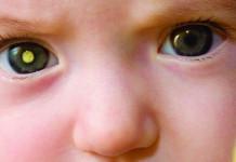 Penyakit Kanker Retinoblastoma Pada Anak: Gejala Retinoblastoma, Penyebab Retinoblastoma dan Pengobatan Retinoblastoma