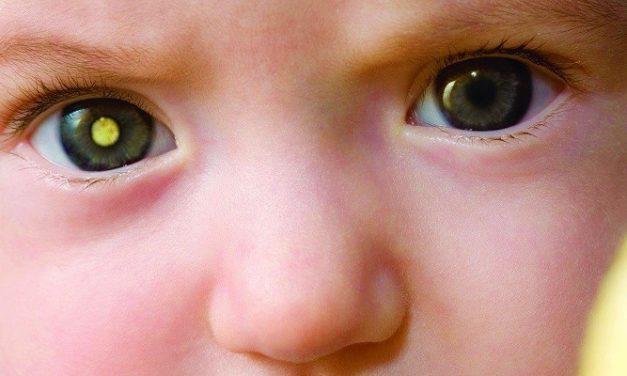 Kanker Retinoblastoma Pada Anak: Info Seputar Kanker Mata