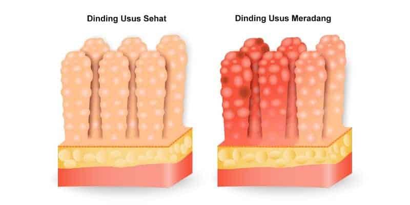 penyakit muntaber - gejala muntaber - penyebab muntaber - cara mengobati muntaber