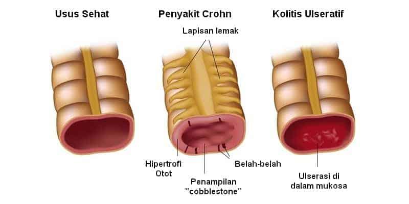 penyakit radang usus - radang usus besar - gejala radang usus - penyebab radang usus - cara mengobati radang usus