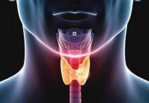 Ilustrasi tumor tiroid dan penyebab tumor tiroid