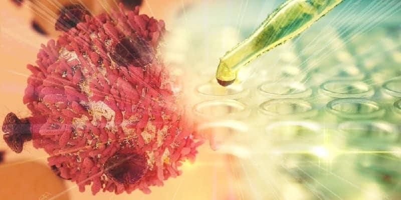 Kupas Tuntas 16 Fakta Kanker yang Wajib Anda Pahami