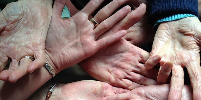 telapak tangan dengan dupuytren