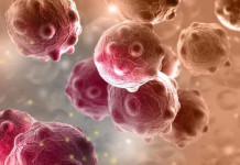 perbedaan tumor dan kanker, beda tumor dan kanker, penyakit tumor