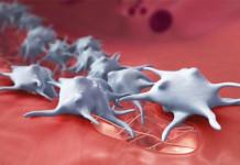 Kanker Darah: Myeloma pada anak (bayi), lansia (orang tua), wanita (perempuan), dan pria (laki-laki)