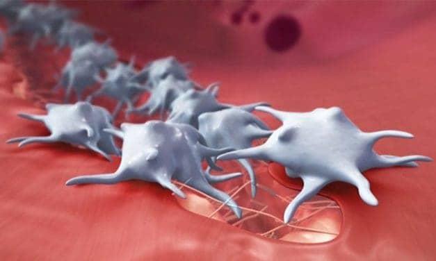 Myeloma: Peningkatan Abnormal Sel Plasma Darah