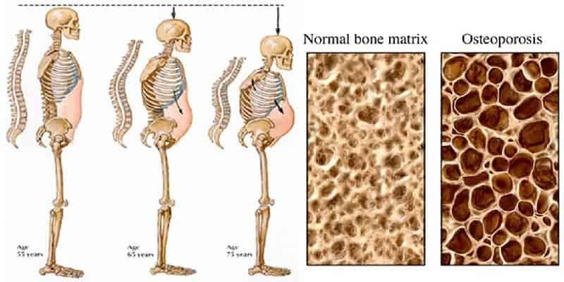 Kondisi Tulang Keropos
