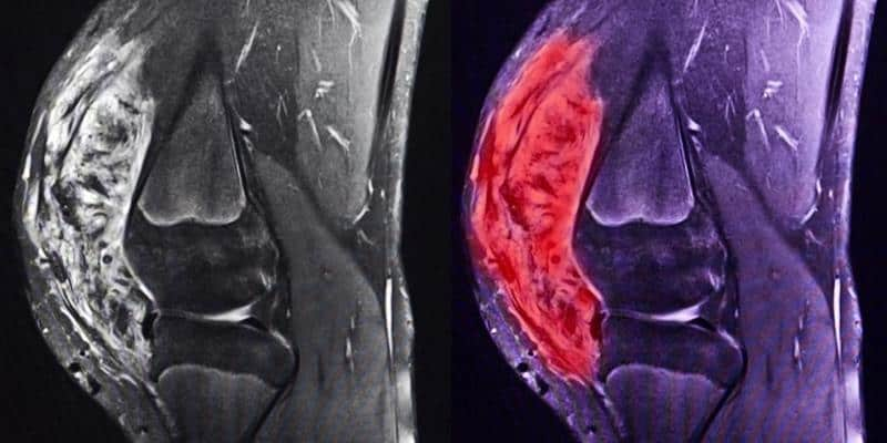 hasil MRI sarkoma di lutut