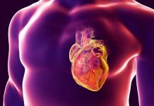 Kanker Jantung