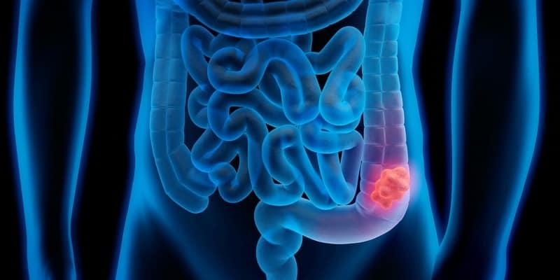 ilustrasi kanker usus besar