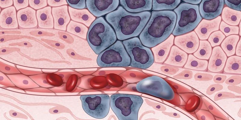 kanker metastatik