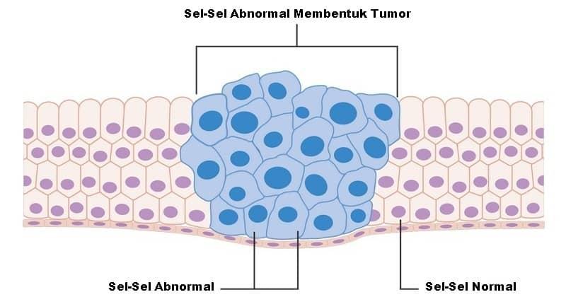 pembentukan tumor