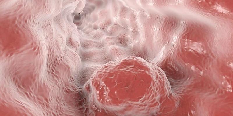 ilustrasi kanker esofagus