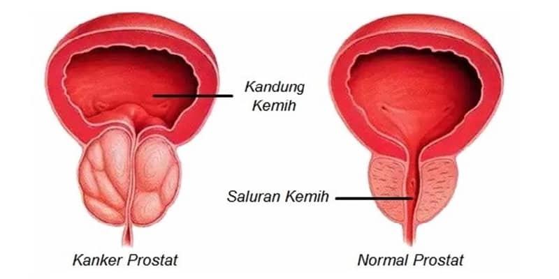 kanker prostat adalah, apa itu kanker prostat, tentang kanker prostat, definisi kanker prostat