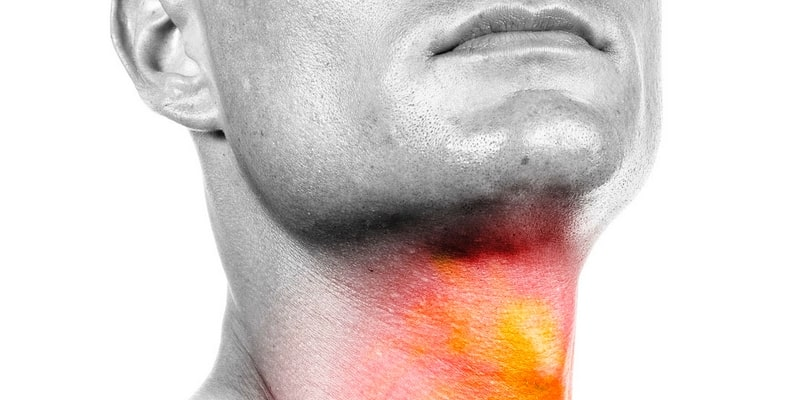 ilustrasi kanker kepala dan leher