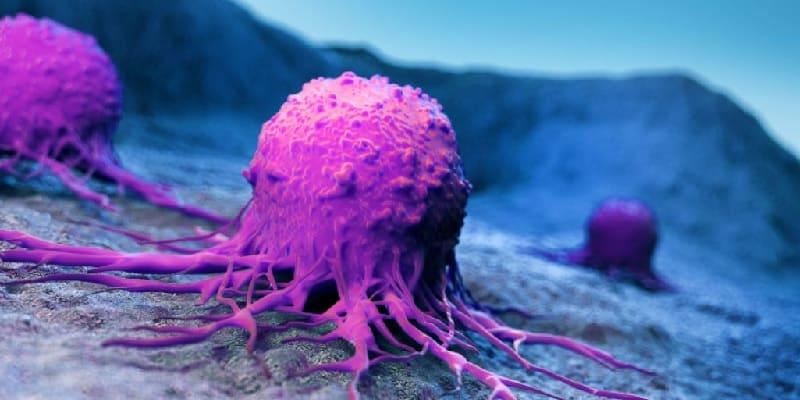 stadium dalam kanker