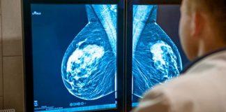 cara mengobati kanker payudara tanpa operasi