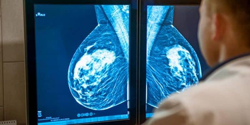 Cara Mengobati Kanker Payudara Tanpa Operasi, Mungkinkah ...