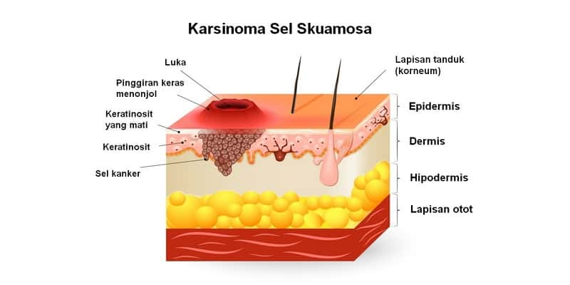 karsinoma sel skuamosa