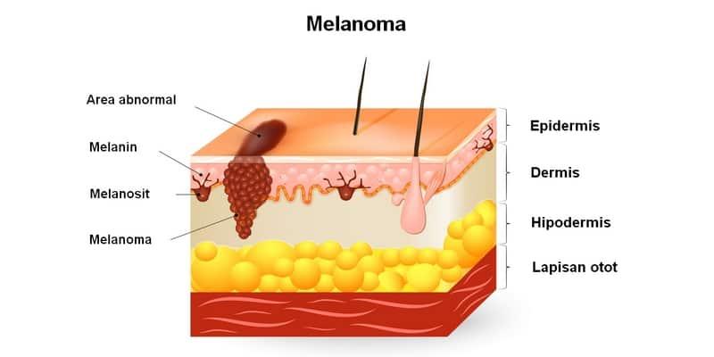 jenis kanker kulit melanoma
