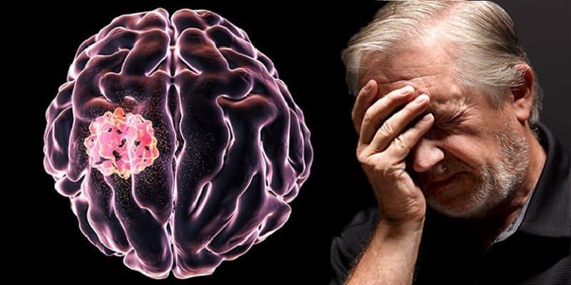 gejala kanker otak stadium 3