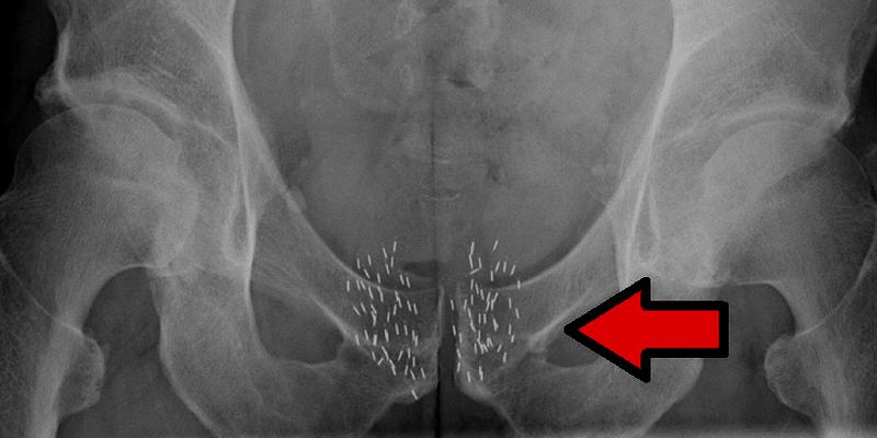 Radioterapi Kanker Internal