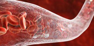 ilustrasi kanker pembuluh darah
