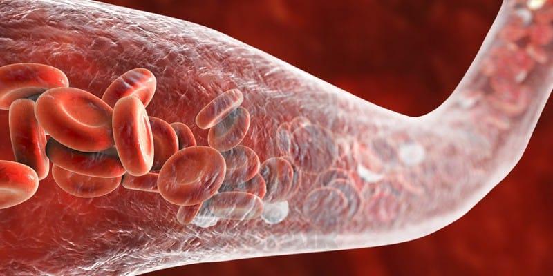 Angiosarkoma, Kanker Sarkoma di Pembuluh Darah • Deherba.com
