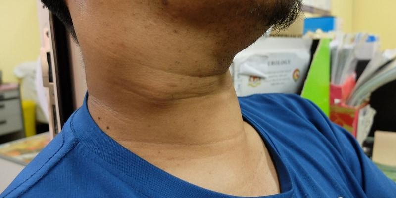 Penyakit Kanker Nasofaring: Penyebab dan Gejalanya ...