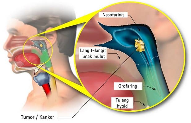 Gambar Kanker Nasofaring