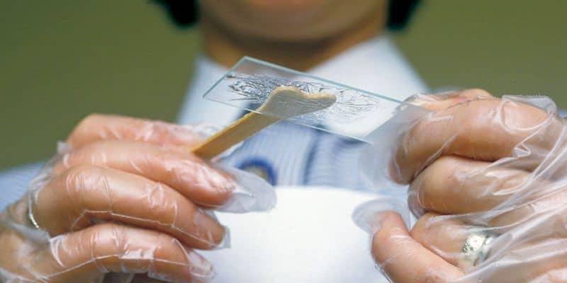 Pap Smear untuk Deteksi Gejala Pra Kanker Serviks