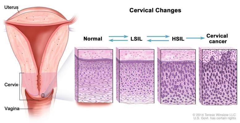 perubahan serviks yang mengarah ke kanker