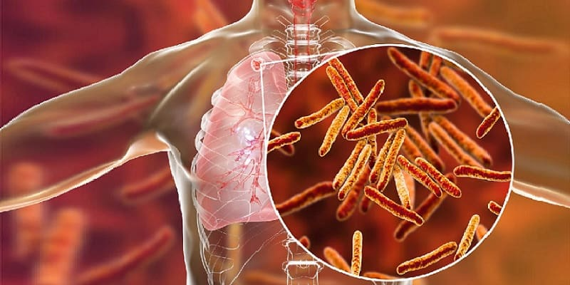 ilustrasi tuberkulosis atau TBC paru-paru