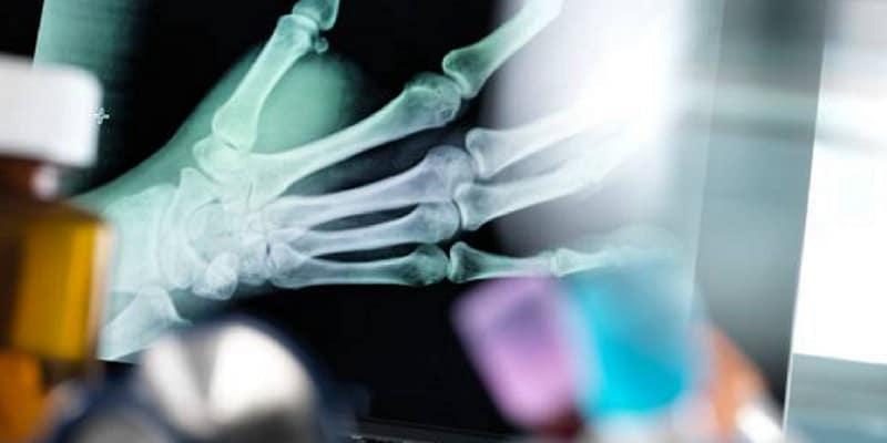 ilustrasi cedera patah tulang