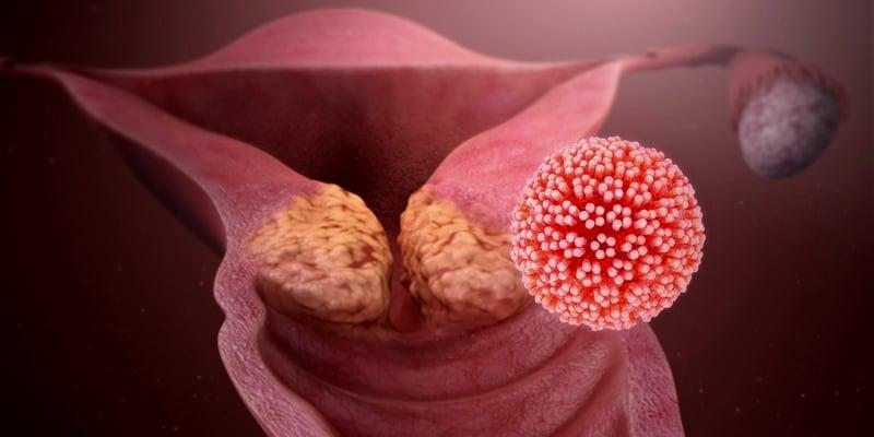 HPV Menyebabkan Mutasi Pemicu Kanker di Serviks