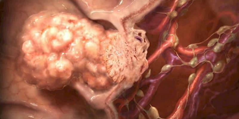 Ilustrasi pertumbuhan kanker