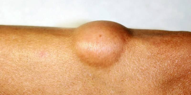 Bedakan Lipoma dengan Kanker Liposarkoma