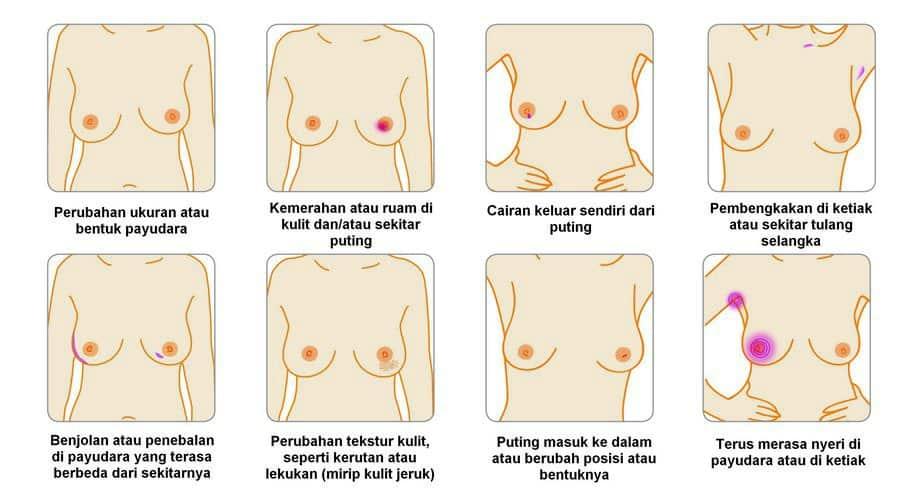 Ilustrasi Cara Deteksi Dini Kanker Payudara