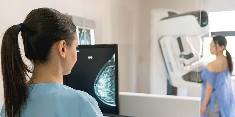 Ilustrasi ragam penyakit kanker pada wanita