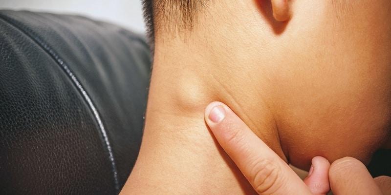 Pembengkakan Kelenjar Getah Bening di Leher Bahaya atau Tidak?