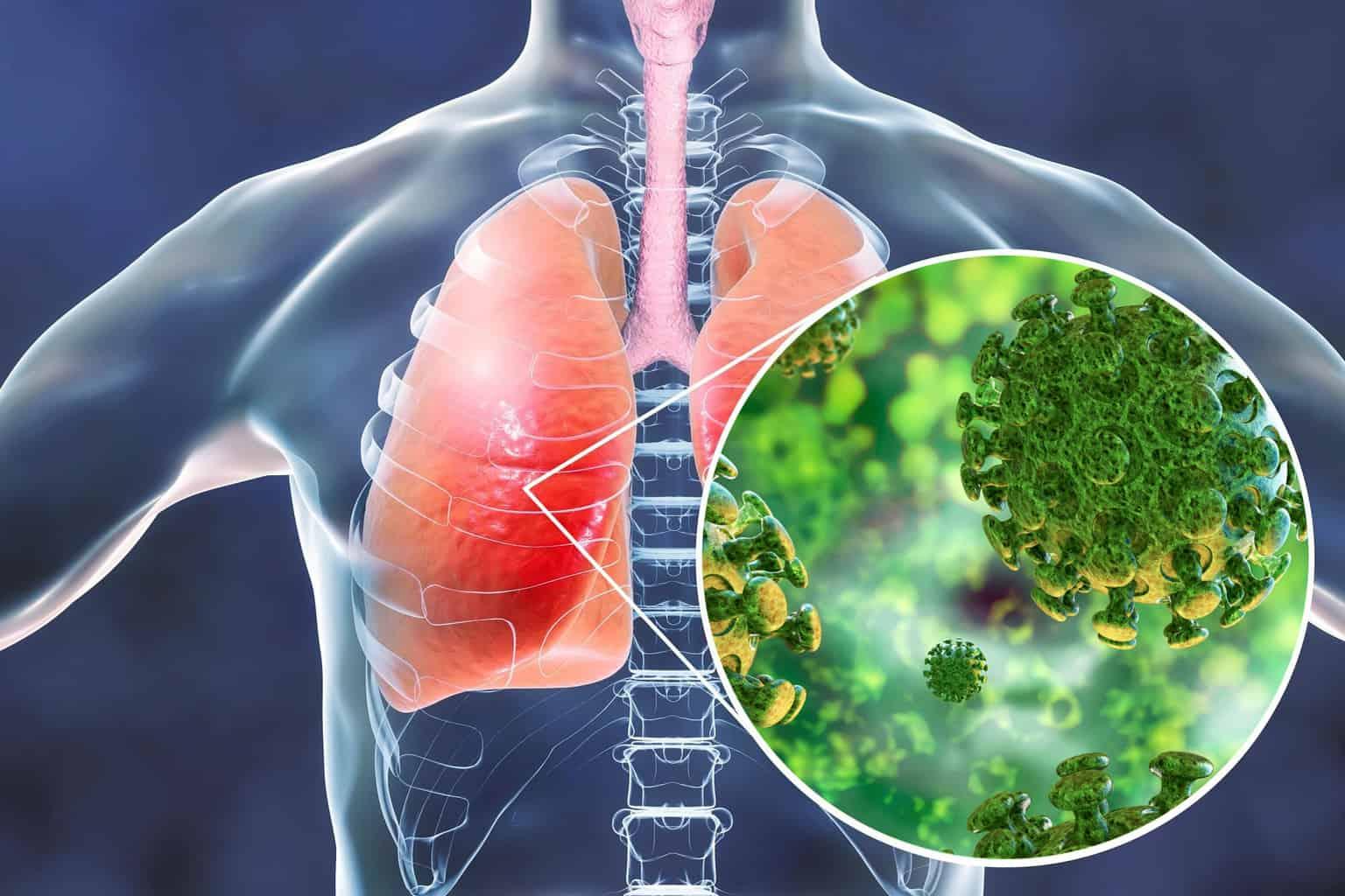 Ilustrasi Penyakit Pneumonia yang Disebabkan oleh Virus Corona