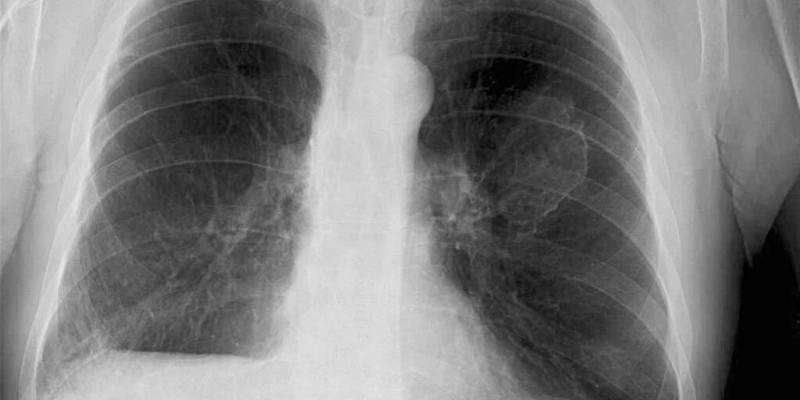 Apa yang Dimaksud Asbestosis?