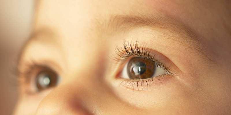 Ilustrasi Penyebab Glaukoma pada Anak