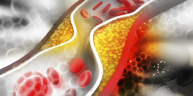Mitos Penyakit Kolesterol