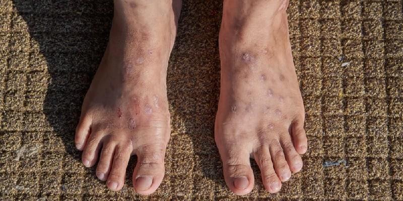 jenis dermatitis statis